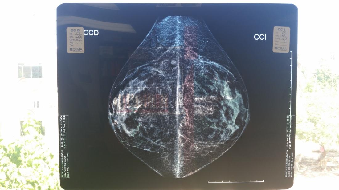 mamografiaenventana